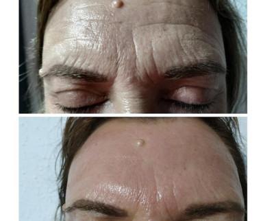Rejuvenecimiento Facial en Benissa con Derma IR