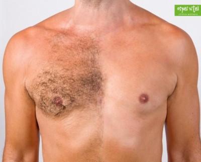 3 Sesiones de Depilación láser de diodo para hombre en Benissa en tórax, abdomen y axilas