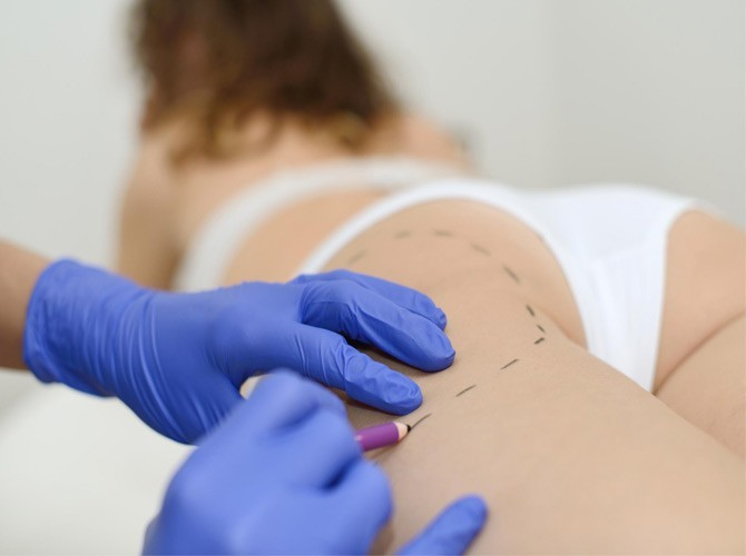 Liposucciónen Denia. Intralipoterapia con Aqualyx